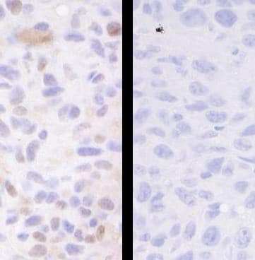 Immunohistochemistry (Formalin/PFA-fixed paraffin-embedded sections) - Anti-SMC3 (phospho S1083) antibody (ab83970)