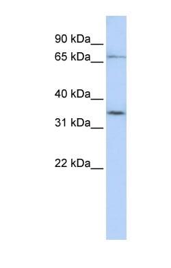 Western blot - Anti-SLCO1C1 antibody (ab83972)