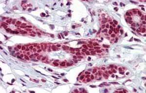 Immunohistochemistry (Formalin/PFA-fixed paraffin-embedded sections) - Anti-NKRF antibody (ab83977)