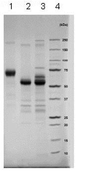 SDS-PAGE - Recombinant Human IFN gamma Receptor beta/AF-1 protein (Fc Chimera) (ab83988)