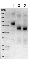 SDS-PAGE - Recombinant human CD116 protein (Fc Chimera) (ab83993)