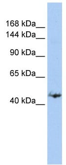 Western blot - Anti-GREB1 antibody (ab84025)