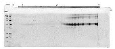 SDS-PAGE - Recombinant human Cripto1/CRIPTO protein (Fc Chimera) (ab84062)