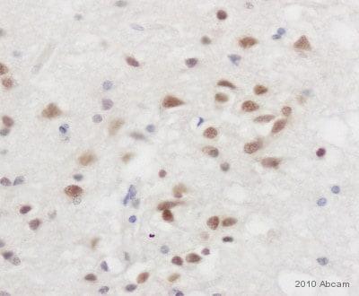 Immunohistochemistry (Formalin/PFA-fixed paraffin-embedded sections) - Anti-TLS/FUS antibody (ab84078)