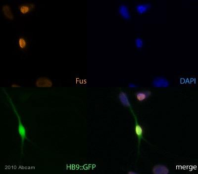 Immunocytochemistry/ Immunofluorescence - Anti-TLS/FUS antibody (ab84078)