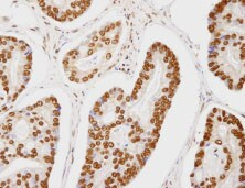 Immunohistochemistry (Formalin/PFA-fixed paraffin-embedded sections) - Anti-CA150 antibody (ab84101)