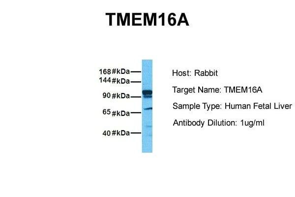 Western blot - Anti-TMEM16A antibody (ab84115)
