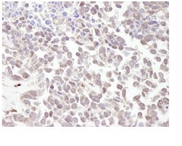 Immunohistochemistry (Formalin/PFA-fixed paraffin-embedded sections) - Anti-MTA1 antibody (ab84136)