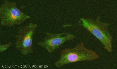 Immunocytochemistry/ Immunofluorescence - Anti-alpha 2 Macroglobulin antibody (ab84176)