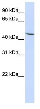 Western blot - Anti-KLF17 antibody (ab84196)