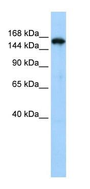 Western blot - Anti-Synaptojanin antibody (ab84309)