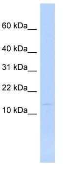 Western blot - MYL6 antibody (ab84349)