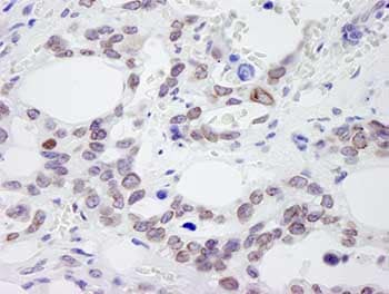 Immunohistochemistry (Formalin/PFA-fixed paraffin-embedded sections) - Anti-NUP214 antibody (ab84357)