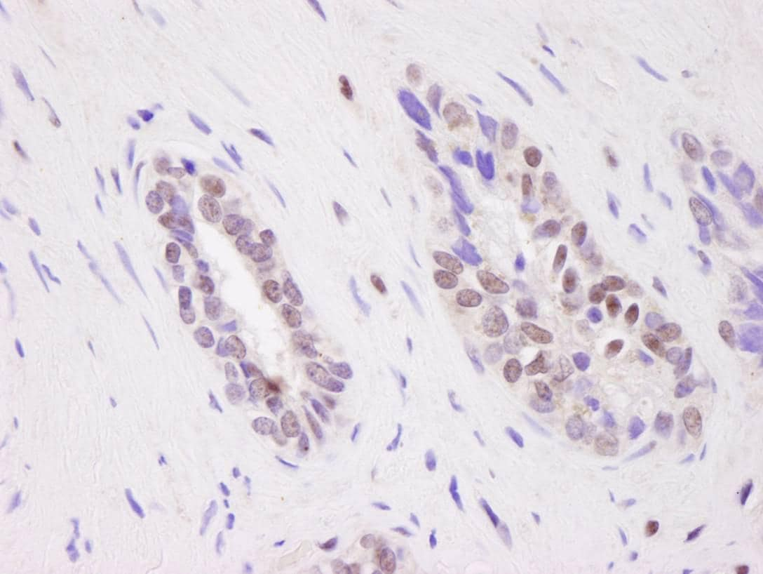 Immunohistochemistry (Formalin/PFA-fixed paraffin-embedded sections) - Anti-CARM1 antibody (ab84370)