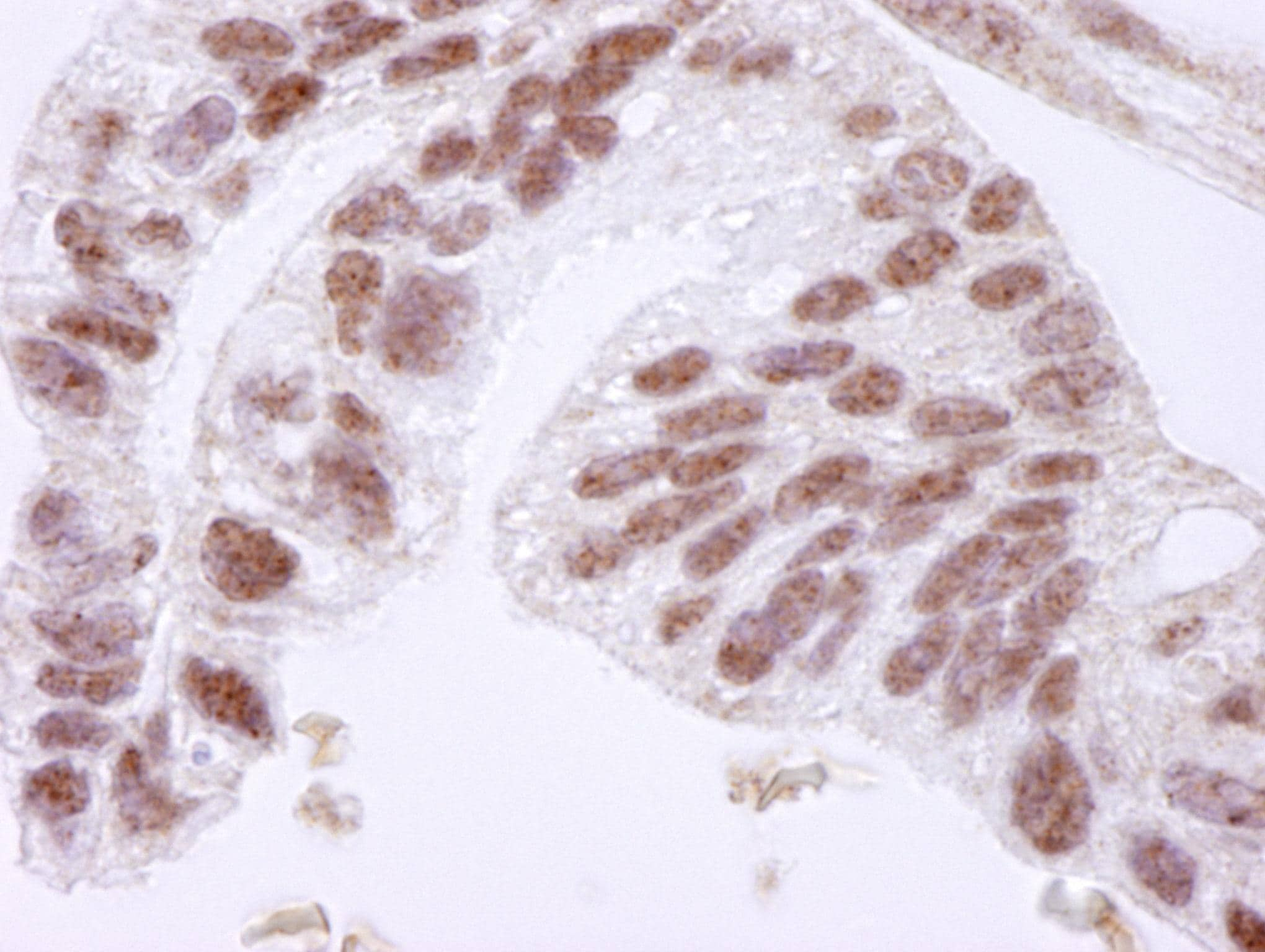 Immunohistochemistry (Formalin/PFA-fixed paraffin-embedded sections) - Anti-CTCF antibody (ab84372)