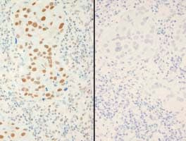 Immunohistochemistry (Formalin/PFA-fixed paraffin-embedded sections) - Anti-XRCC1 (phospho S518 + T519 + T523) antibody (ab84417)