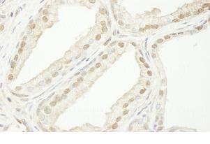 Immunohistochemistry (Formalin/PFA-fixed paraffin-embedded sections) - Anti-TRIM33 antibody (ab84455)