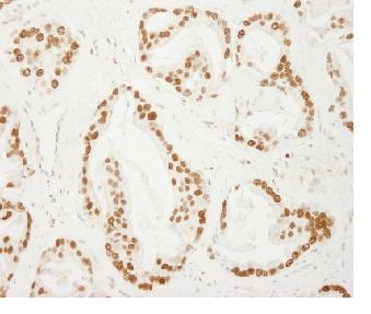 Immunohistochemistry (Formalin/PFA-fixed paraffin-embedded sections) - Anti-PC4 antibody (ab84459)