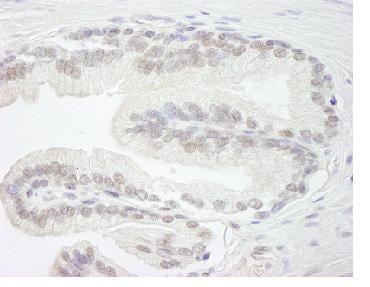 Immunohistochemistry (Formalin/PFA-fixed paraffin-embedded sections) - Anti-ARID1B antibody (ab84461)