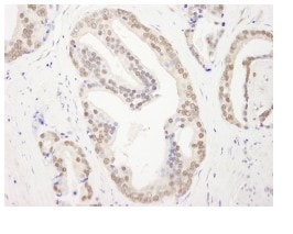 Immunohistochemistry (Formalin/PFA-fixed paraffin-embedded sections) - Anti-RBM26 antibody (ab84466)