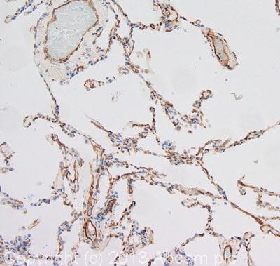 Immunohistochemistry (Formalin/PFA-fixed paraffin-embedded sections) - Anti-CRLR antibody (ab84467)