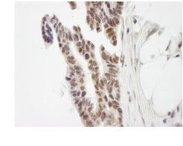 Immunohistochemistry (Formalin/PFA-fixed paraffin-embedded sections) - Anti-ZMYM3 antibody (ab84507)