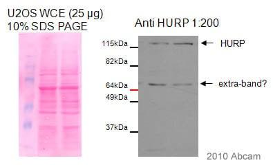 Western blot - Anti-HURP antibody (ab84509)