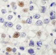 Immunohistochemistry (Formalin/PFA-fixed paraffin-embedded sections) - Anti-HURP antibody (ab84509)