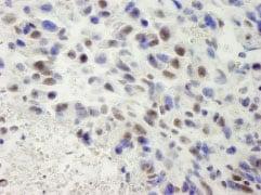 Immunohistochemistry (Formalin/PFA-fixed paraffin-embedded sections) - Anti-hSET1/SET1 antibody (ab84510)