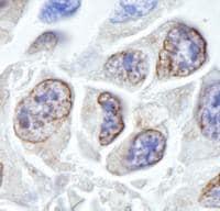 Immunohistochemistry (Formalin/PFA-fixed paraffin-embedded sections) - Anti-TPR antibody (ab84516)