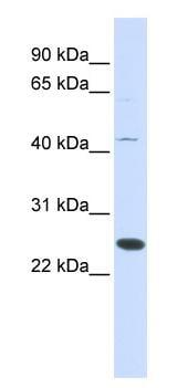 Western blot - Anti-METTL21A antibody (ab84523)