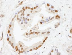 Immunohistochemistry (Formalin/PFA-fixed paraffin-embedded sections) - Anti-CHD8 antibody (ab84527)