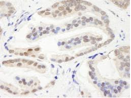 Immunohistochemistry (Formalin/PFA-fixed paraffin-embedded sections) - Anti-CHD3 antibody (ab84528)