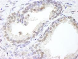 Immunohistochemistry (Formalin/PFA-fixed paraffin-embedded sections) - Anti-USP47 antibody (ab84531)