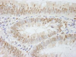 Immunohistochemistry (Formalin/PFA-fixed paraffin-embedded sections) - Anti-CHRAC-17 antibody (ab84532)