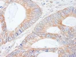 Immunohistochemistry (Formalin/PFA-fixed paraffin-embedded sections) - Anti-CIP2A antibody (ab84547)