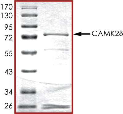 SDS-PAGE - Recombinant human CaMKII delta protein (ab84552)