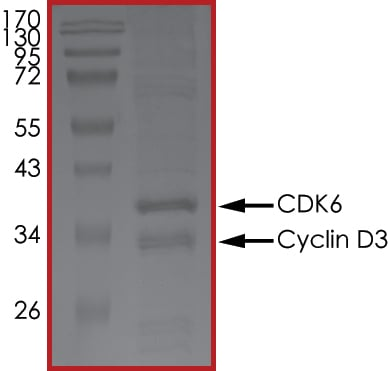 SDS-PAGE - Recombinant human CDK6 + CCND3 protein (ab84557)