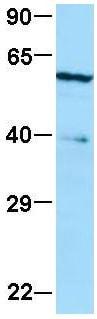 Western blot - Anti-ME1 antibody (ab84561)