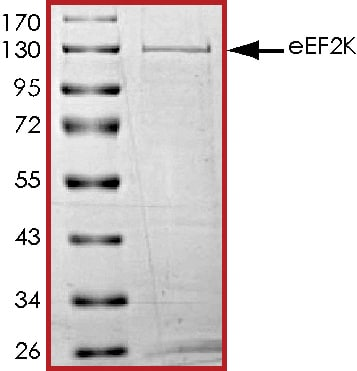 SDS-PAGE - Recombinant human EEF2K protein (ab84570)