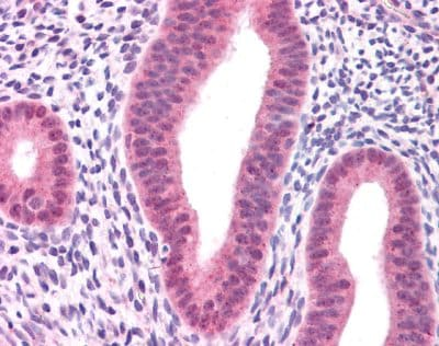 Immunohistochemistry (Formalin/PFA-fixed paraffin-embedded sections) - Anti-Ras antibody (ab84573)
