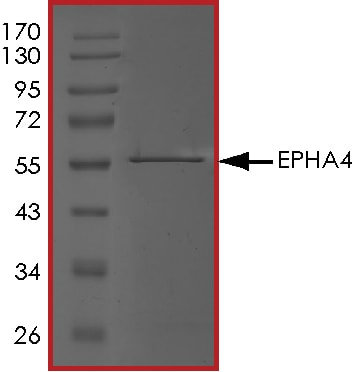SDS-PAGE - Recombinant human Eph receptor A4/SEK protein (ab84575)
