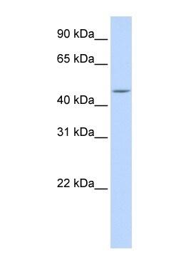 Western blot - Anti-CPE antibody (ab84631)