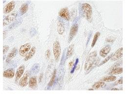 Immunohistochemistry (Formalin/PFA-fixed paraffin-embedded sections) - Anti-NuMA antibody (ab84680)