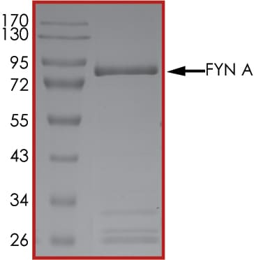 SDS-PAGE - Recombinant human Fyn protein (ab84696)
