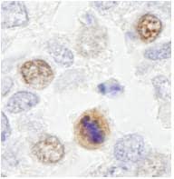 Immunohistochemistry (Formalin/PFA-fixed paraffin-embedded sections) - Anti-CENPF antibody (ab84697)