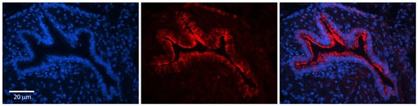 Immunohistochemistry (Formalin/PFA-fixed paraffin-embedded sections) - Anti-CKAP4 antibody (ab84712)