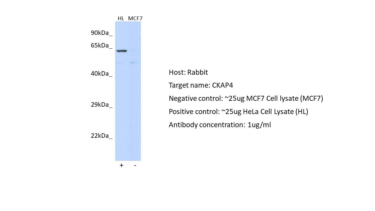 Western blot - Anti-CKAP4 antibody (ab84712)