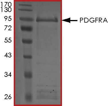 SDS-PAGE - Recombinant human PDGFR alpha protein (ab84797)