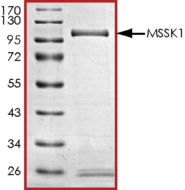 SDS-PAGE - Recombinant human STK23 protein (ab84801)